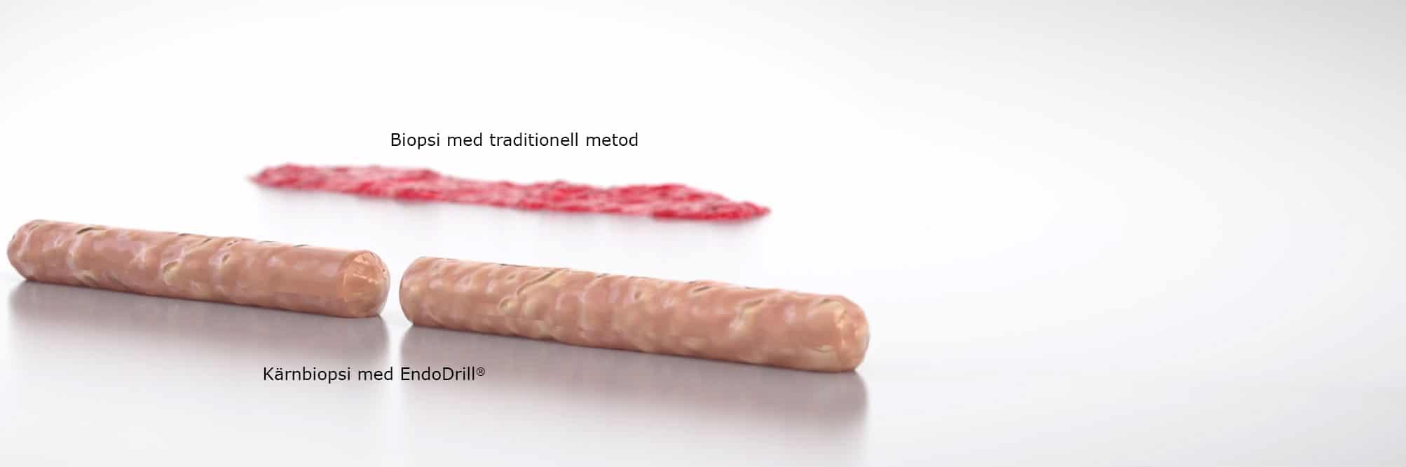 <em>EndoDrill<sup>®</sup> Model X</em> – högkvalitativa kärnbiopsier vid endoskopisk provtagning, för tidigare och mer exakt cancerdiagnostik